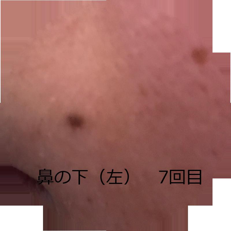 鼻の下 ひげ 7回目(左)